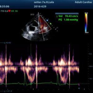 curso ecog cardiaca